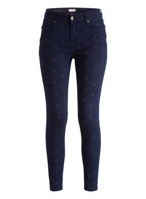 TED BAKER Skinny-Jeans